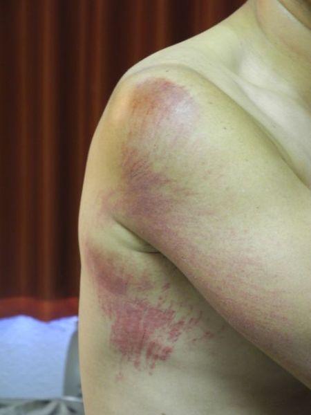 肩から脇の下にかけて擦り傷、たぶん肋骨にヒビ。くしゃみをしたり笑うと激痛。とほほ